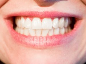 seo wordpress checkup teeth clean